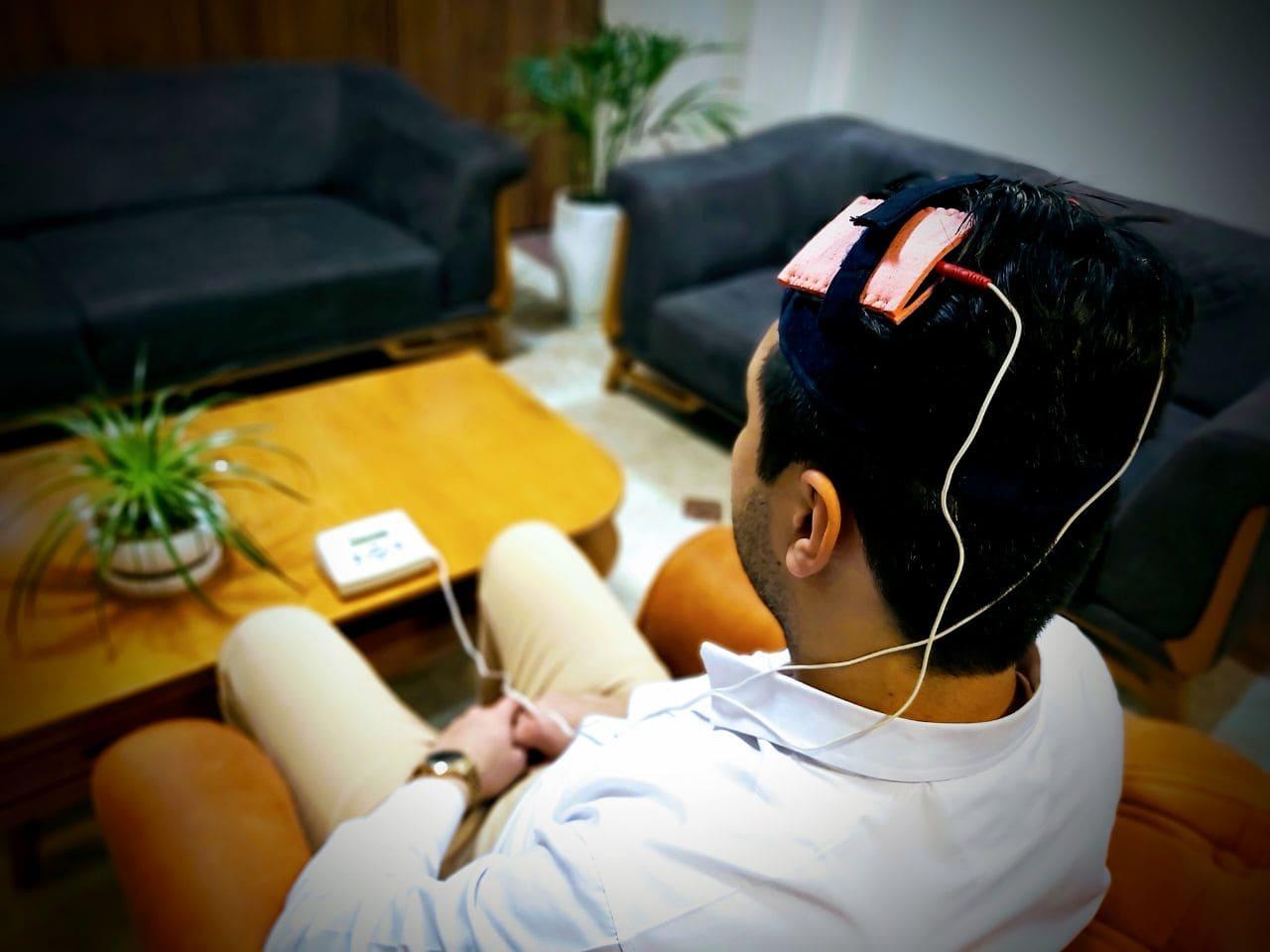 تحریک الکتریکی فراجمجمه ای مغز